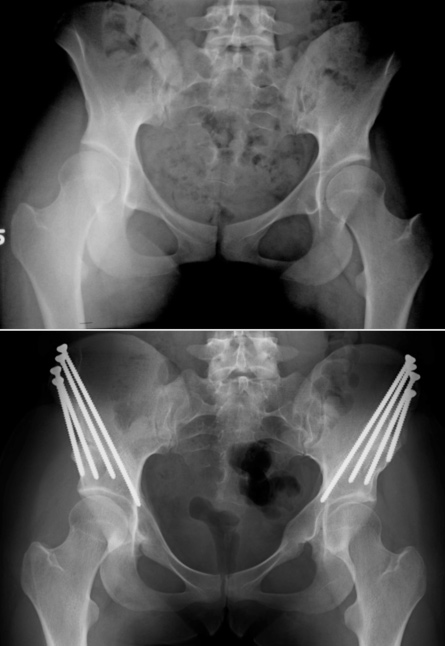 Bilateral acetabular hip dysplasia pre-op and post-op PAO surgery